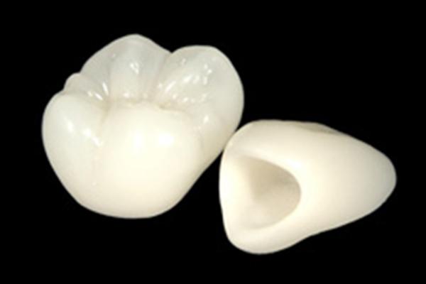 all-ceramic - コピー